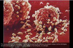 O sistema imunitário humano em acção (em imagens)