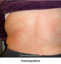 pressure urticaria - when pressure causes skin reactions that dont fade away easily. the pic is mislabled as dermatographism