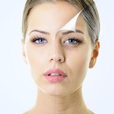 Laser de CO2 fracionado - Dermatologia e Saude