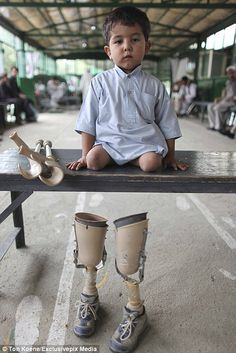 The harrowing plight of children maimed in Afghanistan by landmines #dailymail