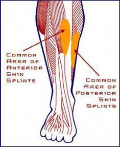 0fda8a76a74 Shin Splints Pain  shinsplintsexercisesstretches Leg Anatomy