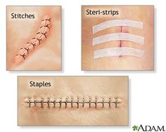 Incision closures: n incision may be closed with: Sutures (stitches) on the outside of the body. Surgical staples, which provide added strength to the incision. Sutures on the inside, underneath the skin. Small sticky strips (called Steri-strips) may be placed on your skin across the incision line. These strips will fall off when the incision has healed.