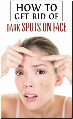 In markets so many products are available for dark spots but they are not safe. In this article, I will some tips for how to get rid of dark spots on face. Sun Spots On Skin, Black Spots On Face, Brown Spots On Hands, Dark Spots, How To Remove Pimples, How To Get Rid Of Acne, Remove Warts, Sunspots On Face, Get Rid Of Spots