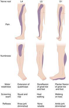 S1 Nerve Roots Reflexes | Lumbar Nerve Root Compression