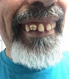Зачем так сделали? #стоматология #dentistry