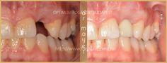 Fogbeültetés - Rózsaszín esztétika szerepe a fogbeültetés során http://www.fogaszat-pest.hu/fogbeultetes-referencia-munka-vp/ #fogbeültetés