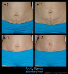DIY Body Wrap. Sorry for doing this but after my weight loss this is similar to what my stomach looks like. Maybe there is hope that mine can be tightened up by something less than surgery.