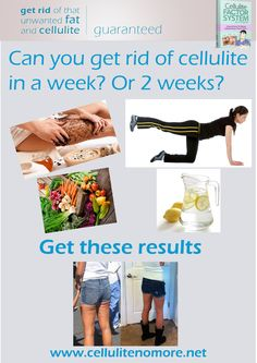 How to get rid of cellulite in a week or 2 weeks. Even though this is almost impossible, using the tips in the article, within a week, you can dramatically reduce your cellulite and also lose weight, just with the right diet, exercises and coffee wraps