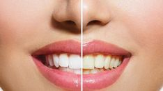 2019 Teeth Whitening Cost - Another! Teeth Whitening Cost, Dental Costs, Cod Memes, Vitamins And Minerals, Our Body, Remedies, Make It Yourself, Canning