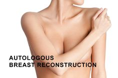 #Breast #reconstruction is carried out in individuals after a mastectomy, or in rare cases of congenital breast absence. Also there are rare cases where breast loss and deformity is a result of trauma or burn.  Read more in today's post. ‪#‎cosmeticsurgery #BreastReconstruction  http://www.rubenabrams.com/autologous-breast-reconstruction/