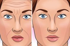 There is no short cut on how to make your skin look younger. However, there are several natural ways which can help you to make your skin look younger. Beauty Tips For Men, Beauty Tips For Glowing Skin, Beauty Skin, Younger Looking Skin, Look Younger, Skin Shine, Acne Spots, Change Is Good, Dark Circles