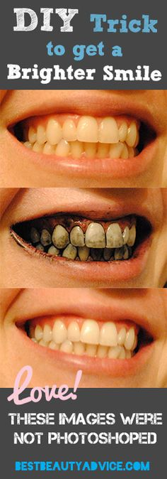 Brighten Your Smile with one cool trick!