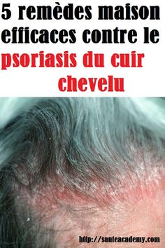 Psoriasis of the scalp is a disorder of the immune system that causes … - Hair Dandruff Psoriasis On Hands, What Is Psoriasis, Psoriasis Causes, Plaque Psoriasis, Psoriasis Remedies, Skin Care Remedies, Psoriasis Scalp, Doterra, Essential Oils For Psoriasis
