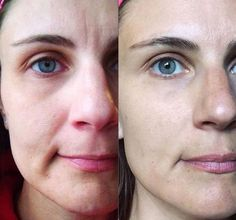 Correcting And Firming Creases And Unfirm Neck And Face Tissue: Start A Facial Aerobics Regimen