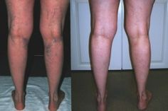 How To Get Rid of Varicose Veins With Apple Cider Vinegar Treatment