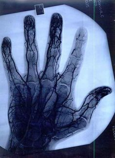 Angiogram showing damaged/decreased vascular tissue in the index finger of a yo-yo master Medical Photos, Surgical Tech, What Happens If You, Strange Photos, Anatomy And Physiology, Blood Vessels, Human Anatomy, Science And Nature, Human Body