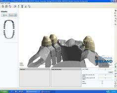 diseño de telescópicas con software 3shape wieland http://www.micasadental.com