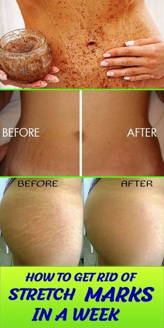 Stretch marks occur when there is a rapid change in your skin due to weight gain or growth. Stretch marks can be very embarrassing at times . Beauty Care, Diy Beauty, Beauty Skin, Beauty Hacks, Beauty Ideas, Homemade Beauty, Beauty Advice, Beauty Secrets, Beauty Guide
