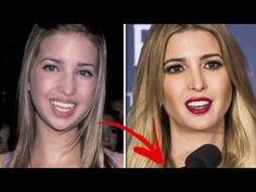 Ivanka Trump  plastic surgery  Doctor speculates