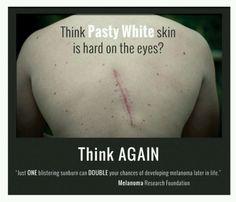 Melanoma... I'll be wearing scars too!