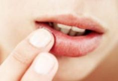 How do you get rid of a cold sore? Home remedies for a cold sore that will have it gone in 3 days. Chapped Lips, Dry Lips, Home Remedies For Herpes, Genital Herpes, Homeopathic Remedies, Autogenic Training, Witch Hazel Uses, Healing Cold Sore, Home