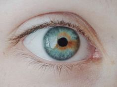 Sectoral heterochromia - so that's what it's called.