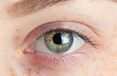 Are you familiar with your cornea? It's that transparent covering of your iris and pupil, and its primary function is to bend light and focus it into the back of your eye where the retina is situated. While it may look like just a thin piece of transparent membrane, your cornea is actually a complex …