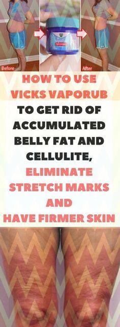 The best ways to Get rid of Warts Naturally #WartsOnHands #BestWayToRemoveWartsOnFace #BestMethodToRemoveSkinTags Foot Warts, Warts On Hands, Warts On Face, How Do You Remove, How To Get Rid Of Acne, Vicks Vaporub, Cellulite, Get Rid Of Warts, Remove Warts
