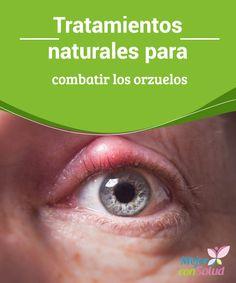 Tratamientos naturales para combatir los orzuelos  Bajo ningún concepto intentaremos extirpar el orzuelo, ya que podemos extender la infección al resto del ojo. Aplica calor en el ojo para aliviar los síntomas y mejorar el cuadro