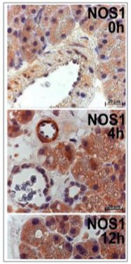 Oxidative Stress And No Generation In Cerulein Induced Rat