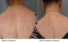 IAD Offers Effective #Ayurvedic Treatment for #LichenPlanus    Get more info @ http://www.iad.org.in/services/lichen-planus/