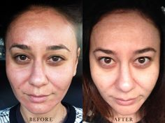 Fraxel Laser Treatment Before & After