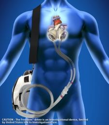 "Ronald Reagan UCLA Medical Center has performed its first procedure to remove a patient's diseased heart and replace it with a SynCardia Temporary Total Artificial Heart. The device fits into a backpack and will act as a ""bridge"" until a donor heart is available. It provides a strong blood-flow throughout the body and allows patients who are awaiting a heart transplant to leave the hospital."