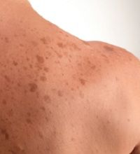 Sun Spots On Skin, Projects To Try, Places To Visit, Age, Skin Care, Facebook, Decoration, Health, Green