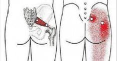 Ischiaspijn is zeer pijnlijk! Het is eerder een symptoom dan een aandoening. Het manifesteert zich als een beenkramp of stekende pijn die het moeilijk maakt om te zitten/staan. De pijn