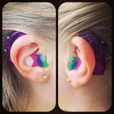 The girl with the purple hearing aids