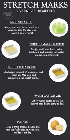 Stretch marks can be caused due to a number of factors like lack of moisturization, dry skin, weight gain, rapid weight loss, etc. Tips For Oily Skin, Moisturizer For Oily Skin, Stretch Mark Removal Cream, Strech Mark Removal, Oil For Stretch Marks, How To Get Rid Of Stretch Marks, Stretch Mark Remedies, Natural Vitamin E, Skin Care Routine Steps
