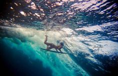 5 Most Common Injuries In Surfing - Cooler