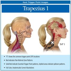 Symptoms of Myofascial Pain | Myofascial Trigger Points Chart.....the muscles in the right side of my face still tightens and can cause deep ear pain and headaches.