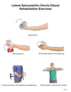 "Exercises for lateral epicondylitis, ""tennis elbow."" http://morphopedics.wikidot.com/physical-therapy-management-of-lateral-epicondylitis4.jpg"