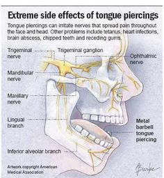 Extreme side effects of tongue piercing