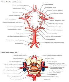 Circle Of Willis Angiogram | Circle of Willis