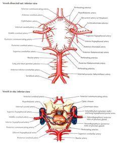 Circle Of Willis Angiogram   Circle of Willis
