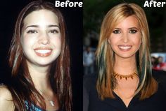 Ivanka Trump Plastic Surgery Before and After Photo: Nose Job & Breast Implants