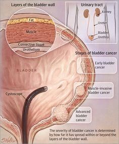 Bladder Cancer 2015-11