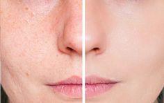 Behandlung mit Tomate gegen fettige Haut und Akne