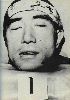 Yukio Mishima's head, after seppuku and daki-kiri, 1970