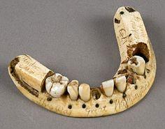 Waterloo, una derrota para Napoleón y un triunfo para los dentistas.