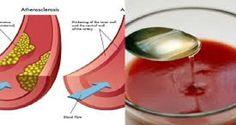 Sólo un vaso de este jugo le ayudará a destapar las arterias, limpiar su cuerpo de todas las toxinas y limpiar los riñones | La Salud Es Todo