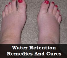 Natural Remedies To Cure Water Retention